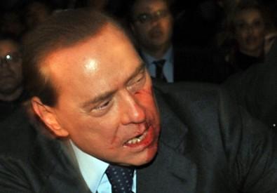 Il presidente del Consiglio Silvio Berlusconi con il volto insanguinato dopo esser stato colpito da  una statuetta del duomo il 13 dicembre 2009 a Milano (ANSA)