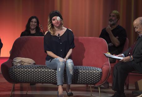 Il coraggio di Gessica Notaro commuove il Maurizio Costanzo Show