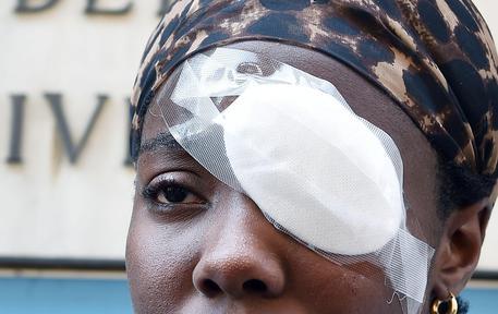 Aggredita Daisy Osakue: 'Solo un'abrasione, ok in pochi giorni'