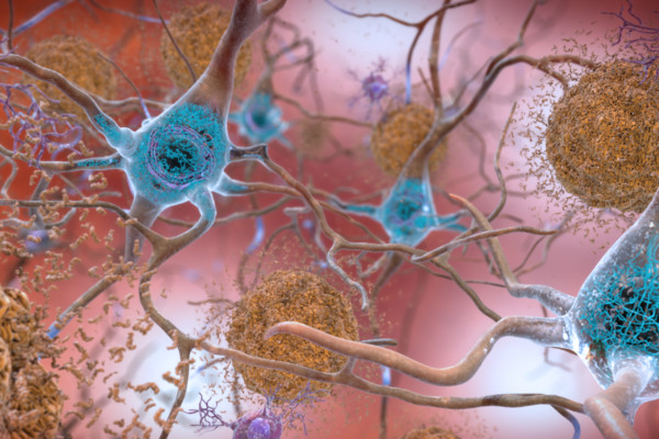 Le cellule nervose e le placche tipiche della malattia di Alzheimer (fonte: National Institute on Aging, NIH, Flickr)