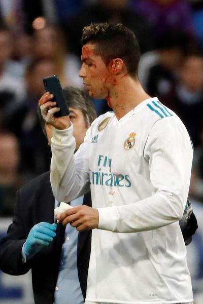 Ronaldo si fa male e si controlla con il telefono calcio for Real madrid oficinas telefono