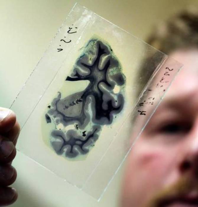 In E-R 11 mila diagnosi Alzheimer a anno