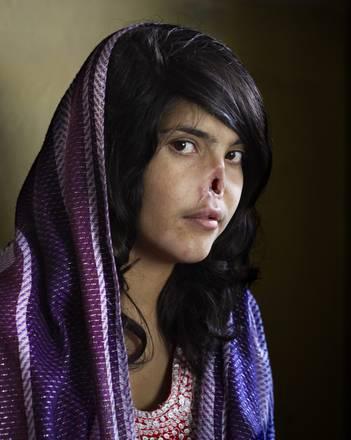 E' il ritratto di Bibi Aisha, una donna afghana sfigurata con il taglio del naso e delle orecchie per avere abbandonato il tetto coniugale, la foto dell'anno 2010. Lo scatto è stato realizzato dalla fotografa sudafricana Jodie Bieber