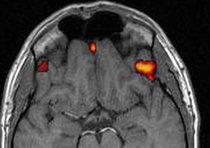 Cervello, nel 2030 pronta prima copia su computer
