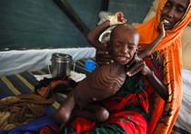 Somalia: Un bambino su 3 e' malnutrito
