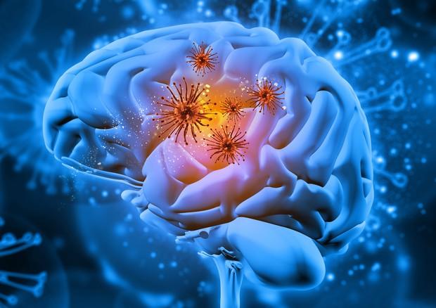Il Morbo Di Alzheimer E In Realta Sei Malattie Diverse Medicina Ansa It