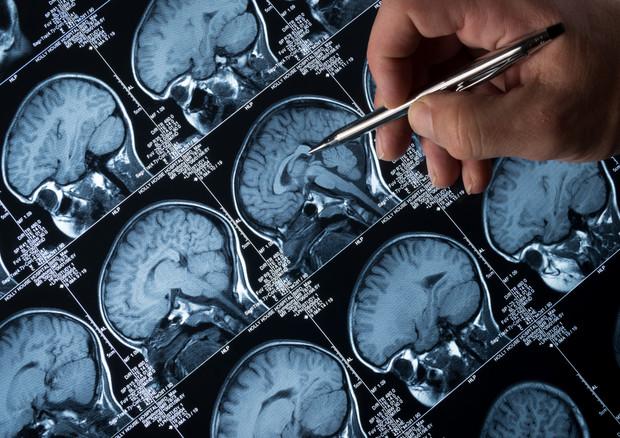 Covid e cervello, 300 studi mettono in allarme © Ansa