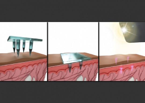 La tecnica che permette di registrare sottopelle i dati relativi alle vaccinazioni, come tatuaggi (fonte: Second Bay Studios, MIT) © Ansa