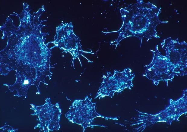 Cellule tumorali (fonte: Cecil Fox, National Cancer Institute) © Ansa
