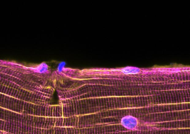 Rappresentazione grafica della mobilitazione delle cellule muscoli per riparare una lesione (fonte: William Roman, iMM) © Ansa