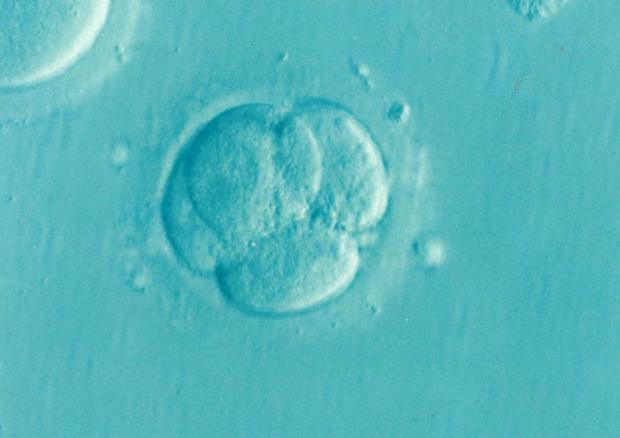 Un embrone umano allo stadio di quattro cellule (fonte: Dr Elena Kontogianni/Wikipedia) © Ansa